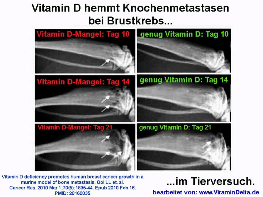 Vitamin d mangel 16