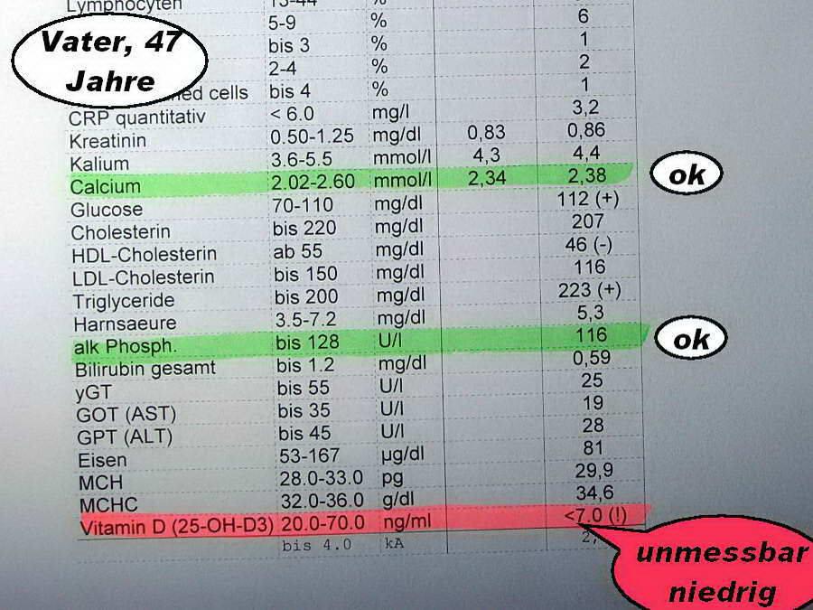 Vitamin d mangel 7 5