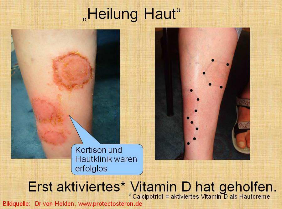 vitamin d mangel kind symptome